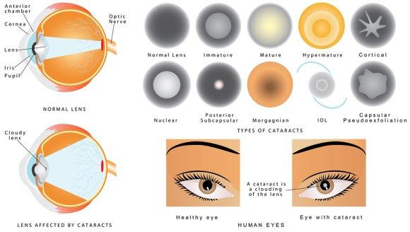 Glaucoma tips by Gerstein Eye Institute